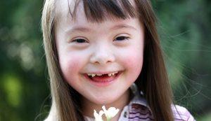 8605 550 300x173 - علت سندروم دان چیست؟ علل، علائم و درمان