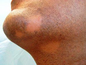 alopecia areata 2 300x225 - کچلی ریش چیست و چگونه درمان می شود؟