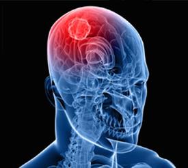 تومور مغزی, بدخیمی های مغز و سیستم عصبی مرکزی چطور شکل می گیرند؟