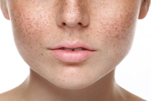 Spots On Skin - شایع ترین عوامل ایجاد لک صورت را بشناسیم!