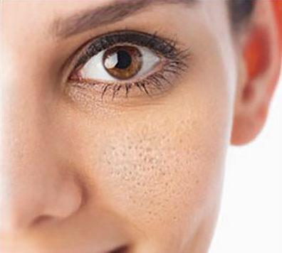 AndroidOnlineNewsImage - منافذ باز صورتم را چگونه درمان کنم؟
