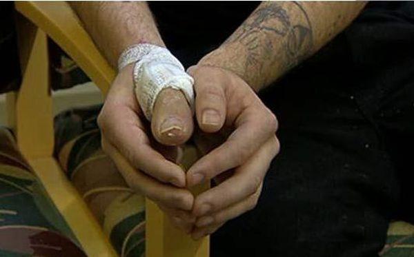 0.648285001315164438 irannaz com - پیوند پا به جای دست!