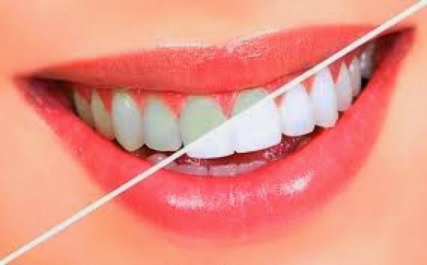 5232352 - راههای آسان سفید کردن دندان