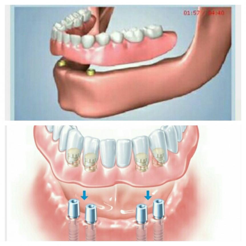 Moldiv 1451249231724 862x862 - حقایقی درباره پروتز دندان