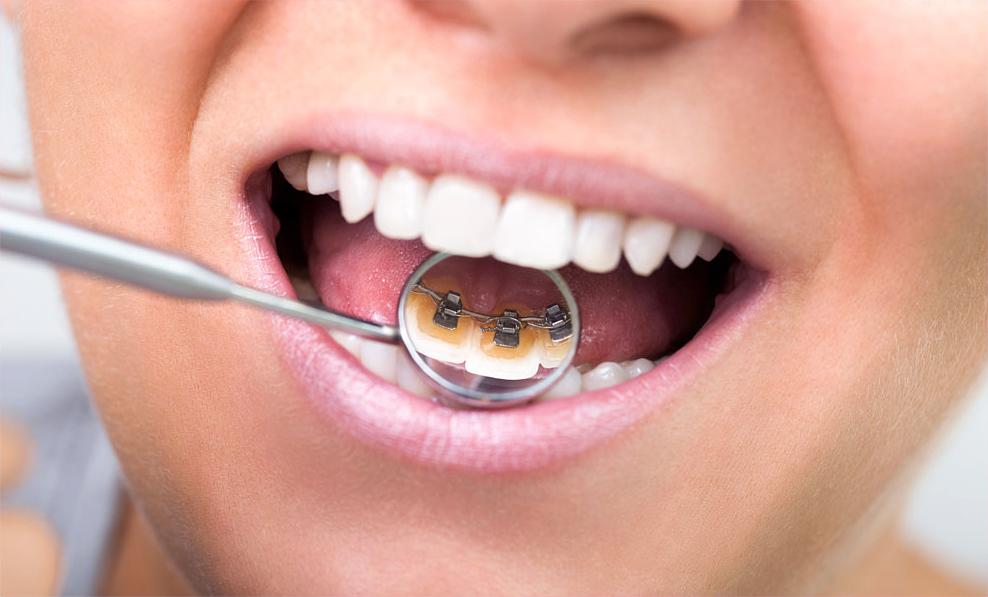 ssiimm smilify lingual braces - آشنایی با ارتودنسی دندان