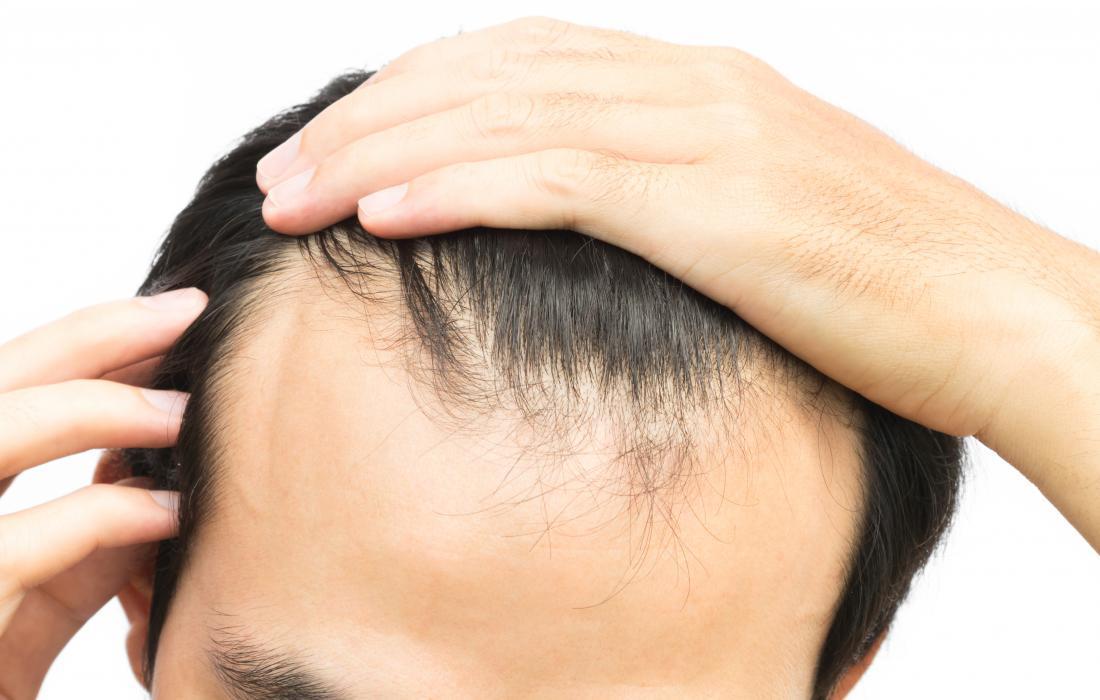 ssiimm man with receding hairline - دلایل ریزش مو