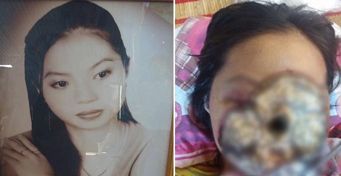 ssiimm vietnamese girls face eaten by bacteria due to sinus infection world of buzz - عفونتی که صورت بازیگر را خراب کرد!