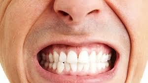 ssiimm bruxism - تاثیر دندون قروچه بر سلامت دندان