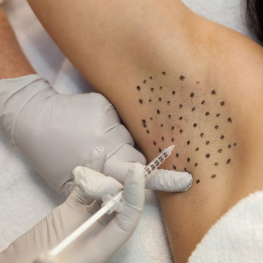 03 - تزریق بوتاکس زیر بغل برای درمان تعریق بیش از حد موثر است ؟!