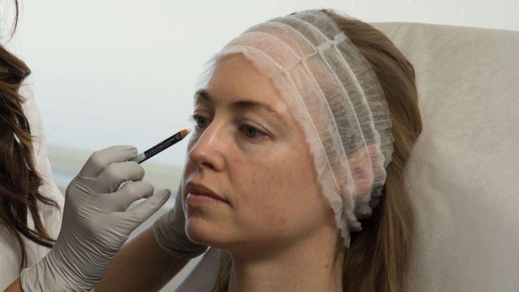 تزریق فیلر برای سیاهی دور چشم